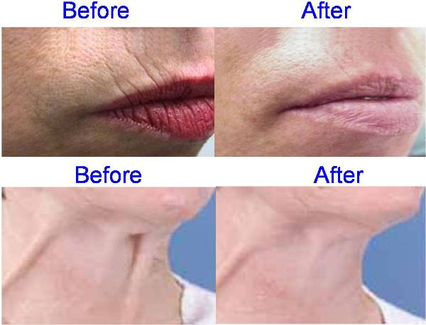 Botox Before & After Pictures - Upper Lip and Neck