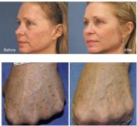 Titan Laser Before & After Pictures - Face and Hands