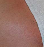 Titan Laser Hair Removal - After (small)