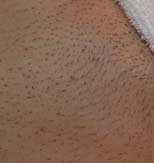 Titan Laser Hair Removal - Before (small)