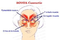 Botox treatments for the face