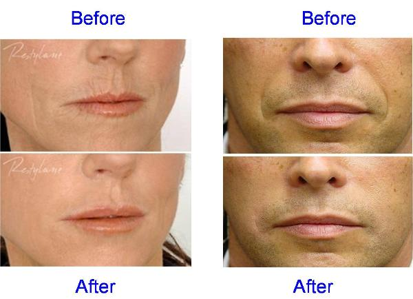 Restylane And Perlane Before & After - Nose & Mouth