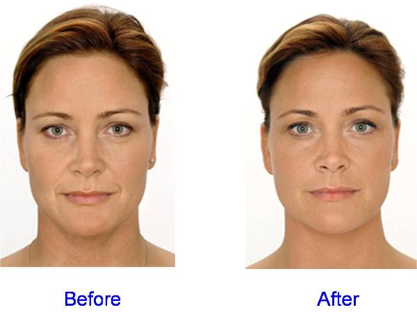 Dermal Fillers Before & After for the Face