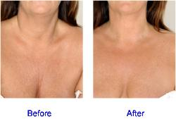 Dermal Fillers Chest Area (Decolletage)