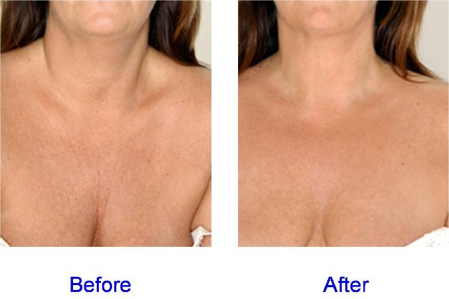 Juvederm Before & After Chest Area (Decolletage)