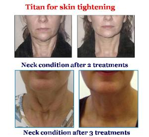 Titan Laser  Before and After - Neck Area