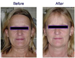 Titan Laser Before and After - Face & Neck