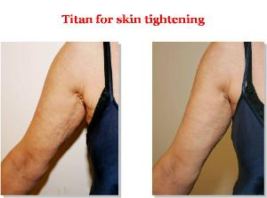 Titan Laser Treatments Before & after - Arms