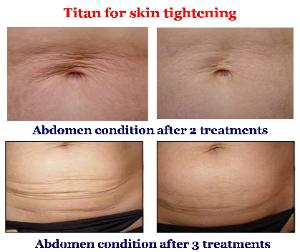 Titan Laser Before & After for the Abdomen